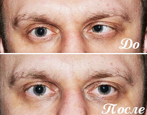 Correction du strabisme au Botox