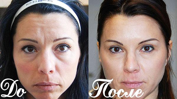 Élimination du pli sourcil avec Botox (à préciser avant et après l'intervention)