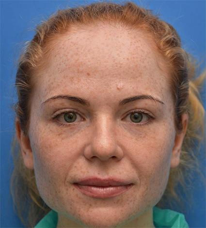 Botox correction du sillon nasogénien