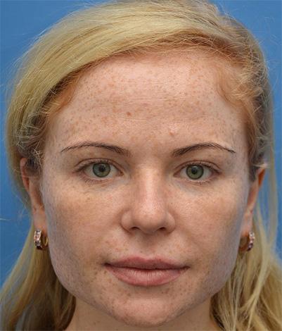 retrait du sillon nasogénien après un lifting du visage