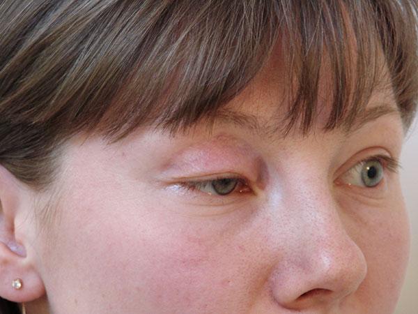 La ptose du siècle est un effet secondaire de la thérapie botulique