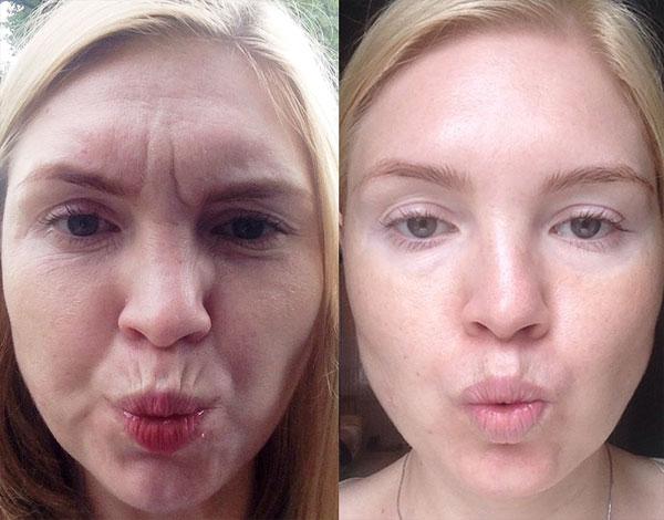 Le résultat de l'utilisation de Botox