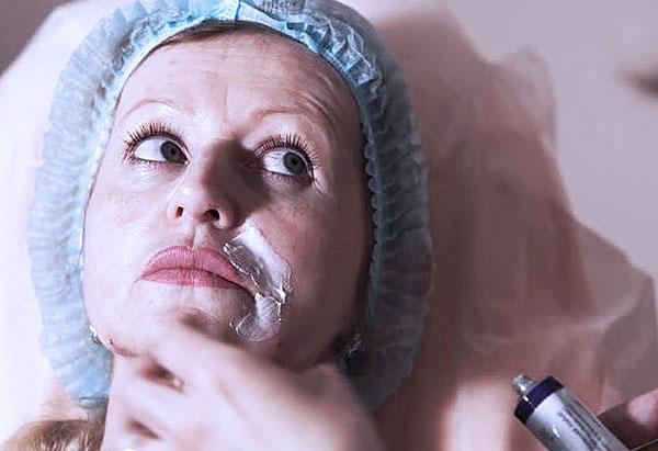 Anesthésie avant les injections de Botox