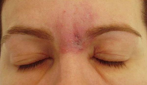 Allergie après le Botox