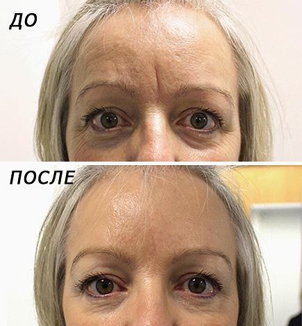Élimination du botox interbrow (avant, après)