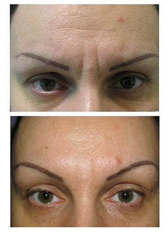 Le résultat de l'élimination des sourcils rides Botox