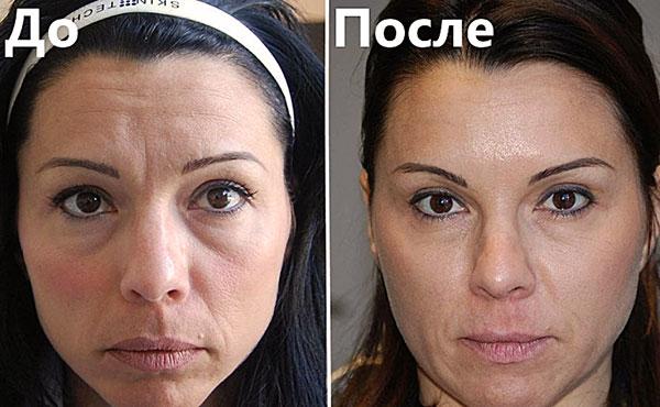 L'effet de Botox sur le front et le front
