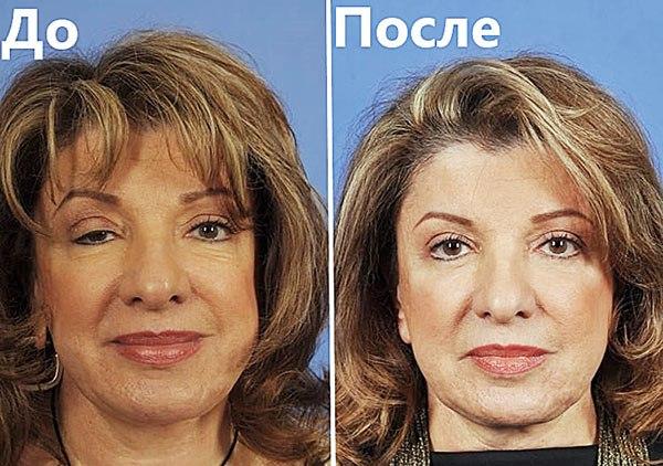 Botpharospasme fix Botox
