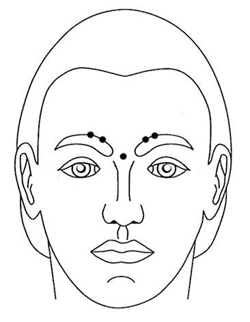 Points d'intersection du Botox